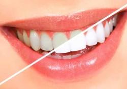 Diş Beyazlatma ve Diş Temizleme