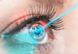 Göz Bozuklukları ve Lazerle Tedavisi