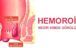 Hemoroid ve Belirtileri Nelerdir?